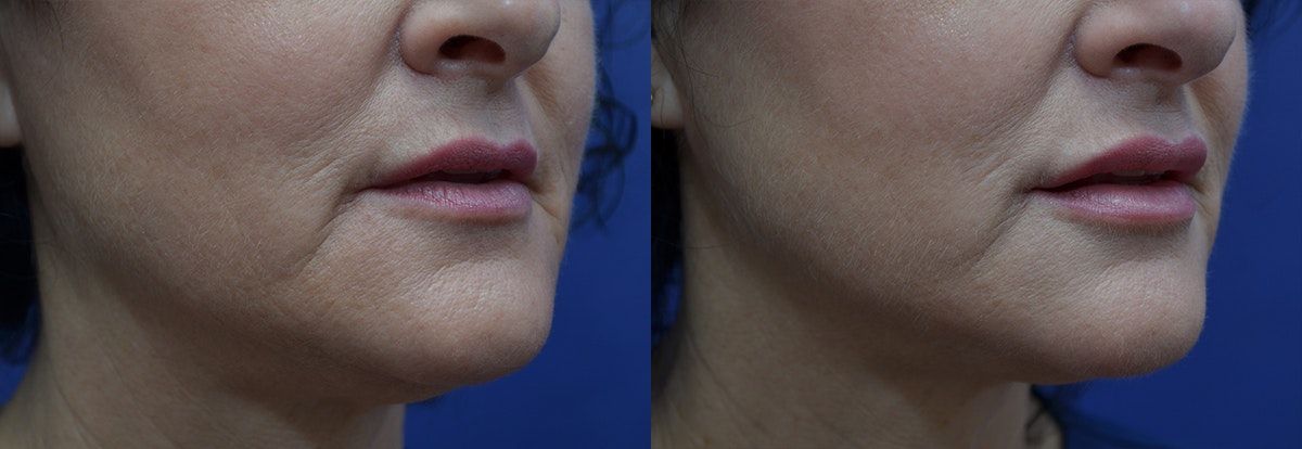 Lip Enhancement Gallery - Patient 8694344 - Image 3