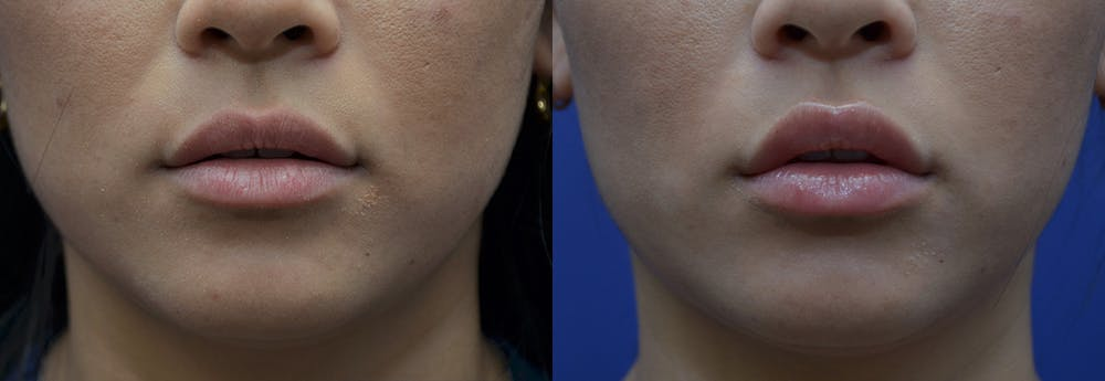 Lip Enhancement Gallery - Patient 8694345 - Image 1