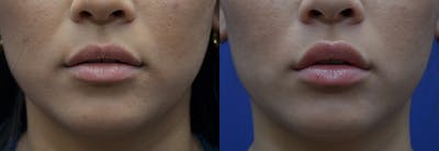 Lip Enhancement Gallery - Patient 8694345 - Image 1