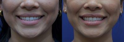 Lip Enhancement Gallery - Patient 8694345 - Image 2
