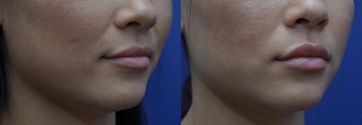 Lip Enhancement Gallery - Patient 8694345 - Image 3