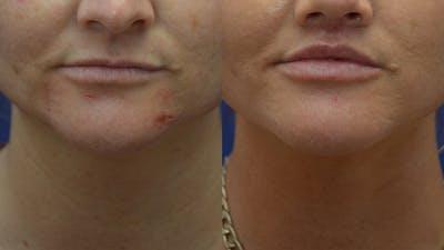 Lip Lift Gallery - Patient 14391503 - Image 2