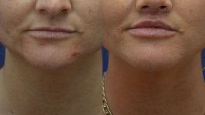 Lip Enhancement Gallery - Patient 14391507 - Image 1