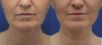 Facelift Gallery - Patient 5882980 - Image 1