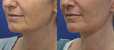 Facelift Gallery - Patient 5882980 - Image 2