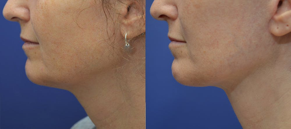 Facelift Gallery - Patient 5882980 - Image 3