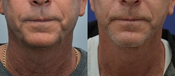 Facelift Gallery - Patient 4588150 - Image 1