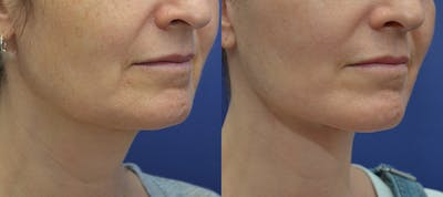 Facelift Gallery - Patient 5882980 - Image 4