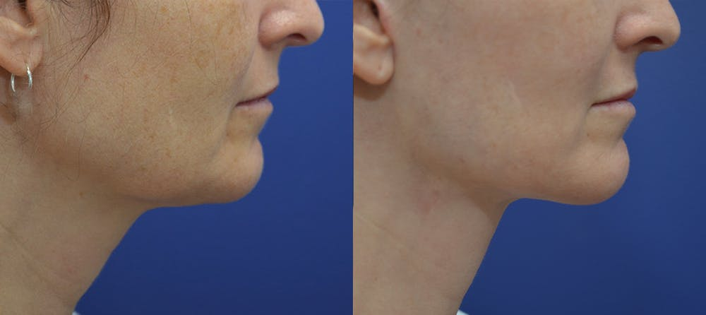 Facelift Gallery - Patient 5882980 - Image 5
