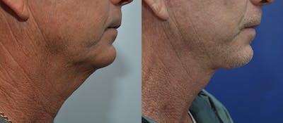 Facelift Gallery - Patient 4588150 - Image 2