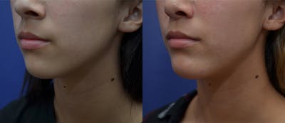 Chin Augmentation Gallery - Patient 14391566 - Image 1