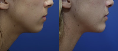 Chin Augmentation Gallery - Patient 14391566 - Image 4