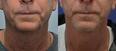 Neck Lift Gallery - Patient 4588346 - Image 1
