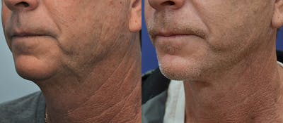 Neck Lift Gallery - Patient 4588346 - Image 2