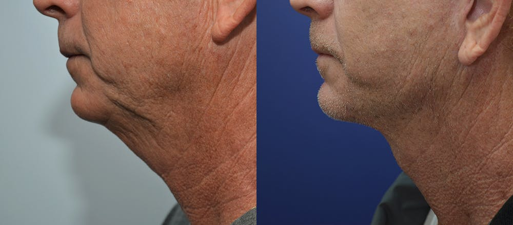 Neck Lift Gallery - Patient 4588346 - Image 3