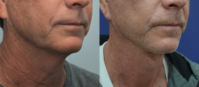 Neck Lift Gallery - Patient 4588346 - Image 4