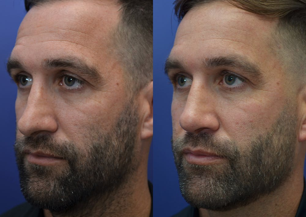 Rhinoplasty (Nose Reshaping) Gallery - Patient 5289018 - Image 2