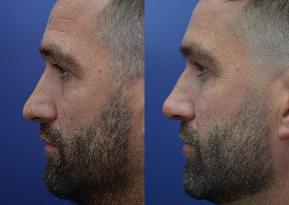 Rhinoplasty (Nose Reshaping) Gallery - Patient 5289018 - Image 3