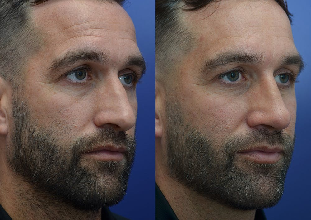 Rhinoplasty (Nose Reshaping) Gallery - Patient 5289018 - Image 4