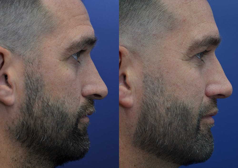 Rhinoplasty (Nose Reshaping) Gallery - Patient 5289018 - Image 5