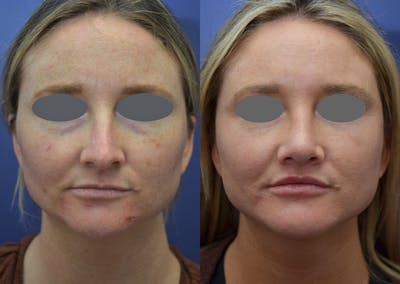 Rhinoplasty (Nose Reshaping) Gallery - Patient 14391501 - Image 1