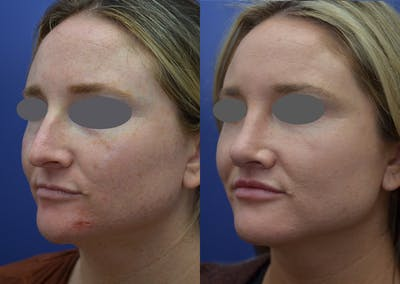 Rhinoplasty (Nose Reshaping) Gallery - Patient 14391501 - Image 2