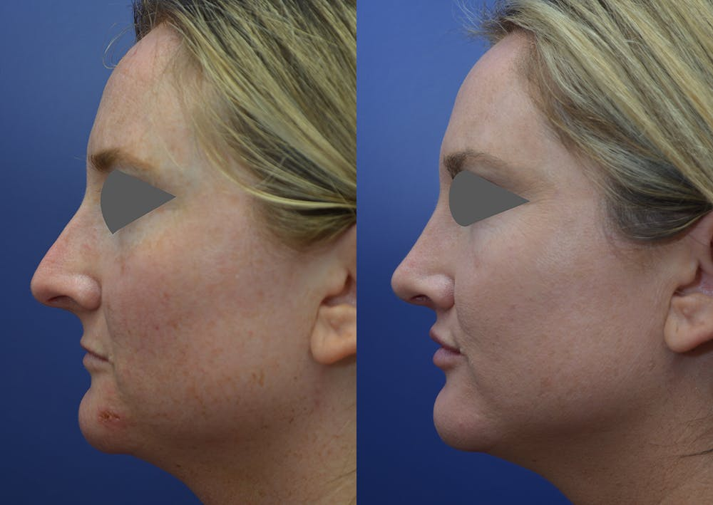 Rhinoplasty (Nose Reshaping) Gallery - Patient 14391501 - Image 3