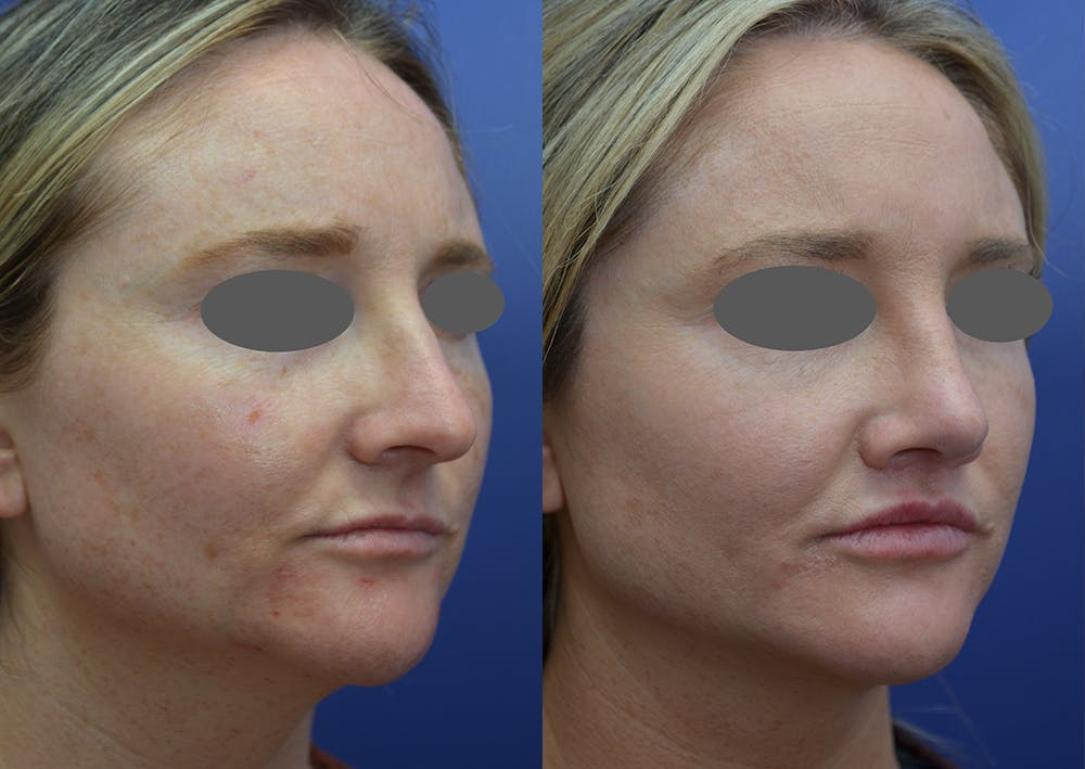 Rhinoplasty (Nose Reshaping) Gallery - Patient 14391501 - Image 4