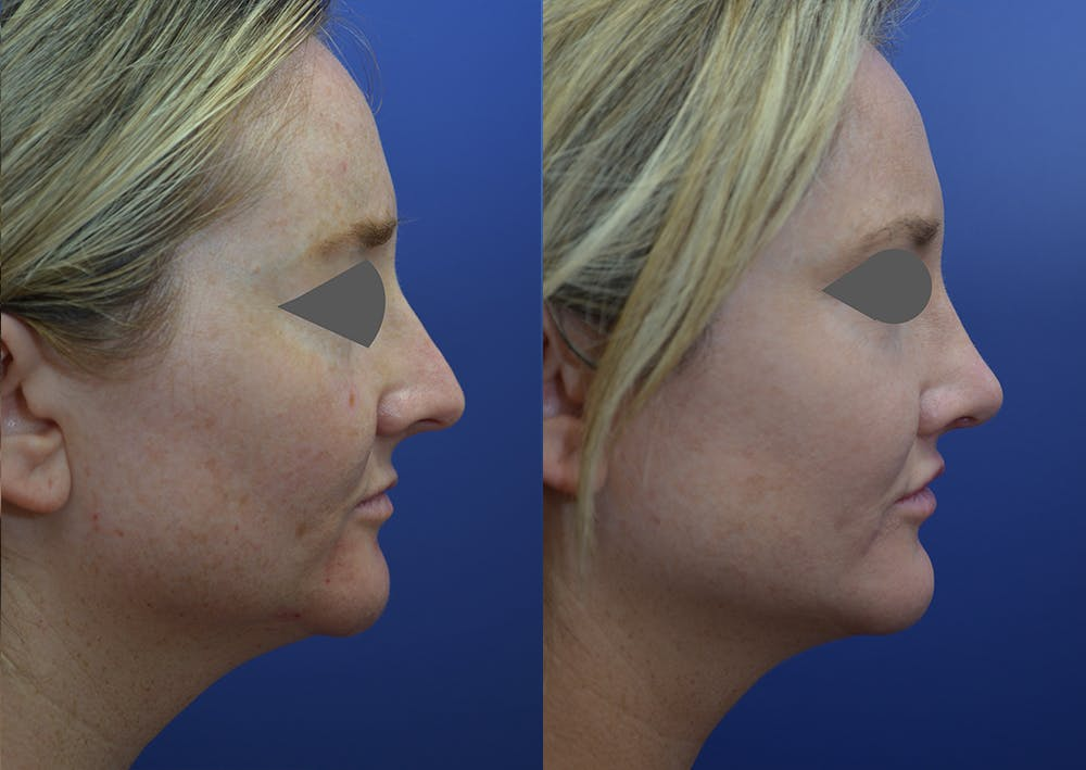 Rhinoplasty (Nose Reshaping) Gallery - Patient 14391501 - Image 5