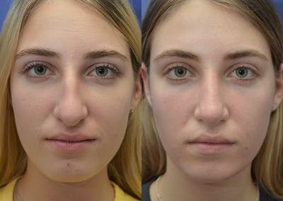 Rhinoplasty (Nose Reshaping) Gallery - Patient 5930630 - Image 1