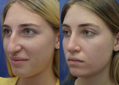 Rhinoplasty (Nose Reshaping) Gallery - Patient 5930630 - Image 2