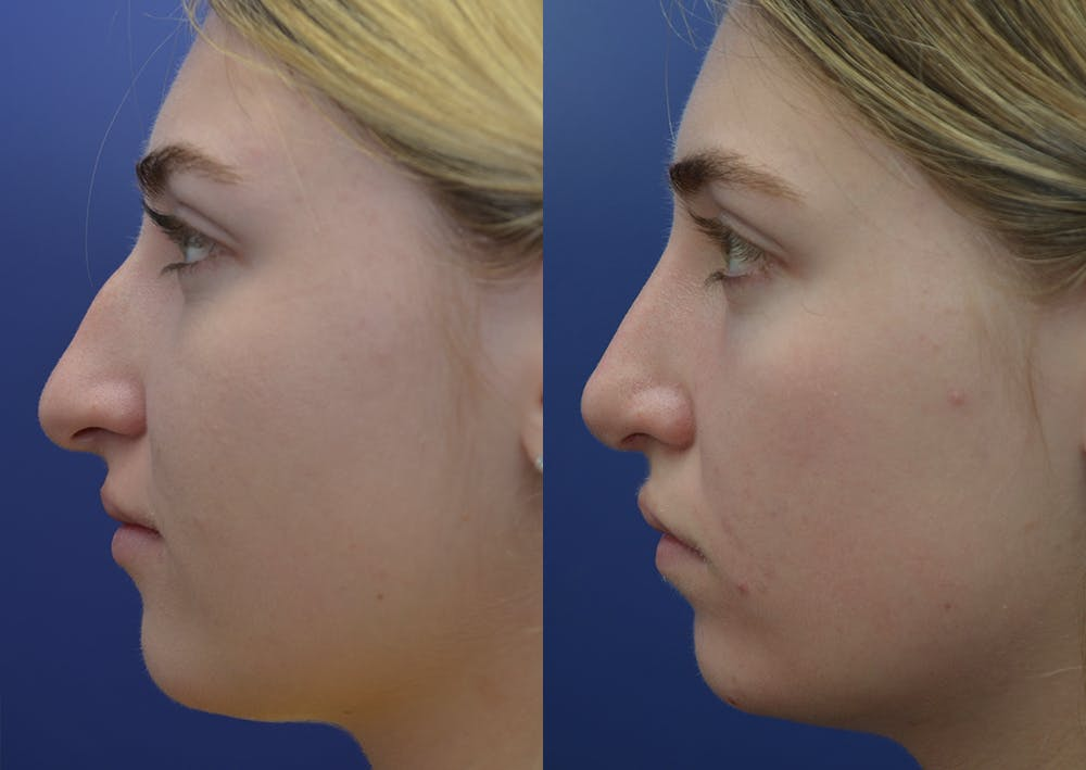 Rhinoplasty (Nose Reshaping) Gallery - Patient 5930630 - Image 3