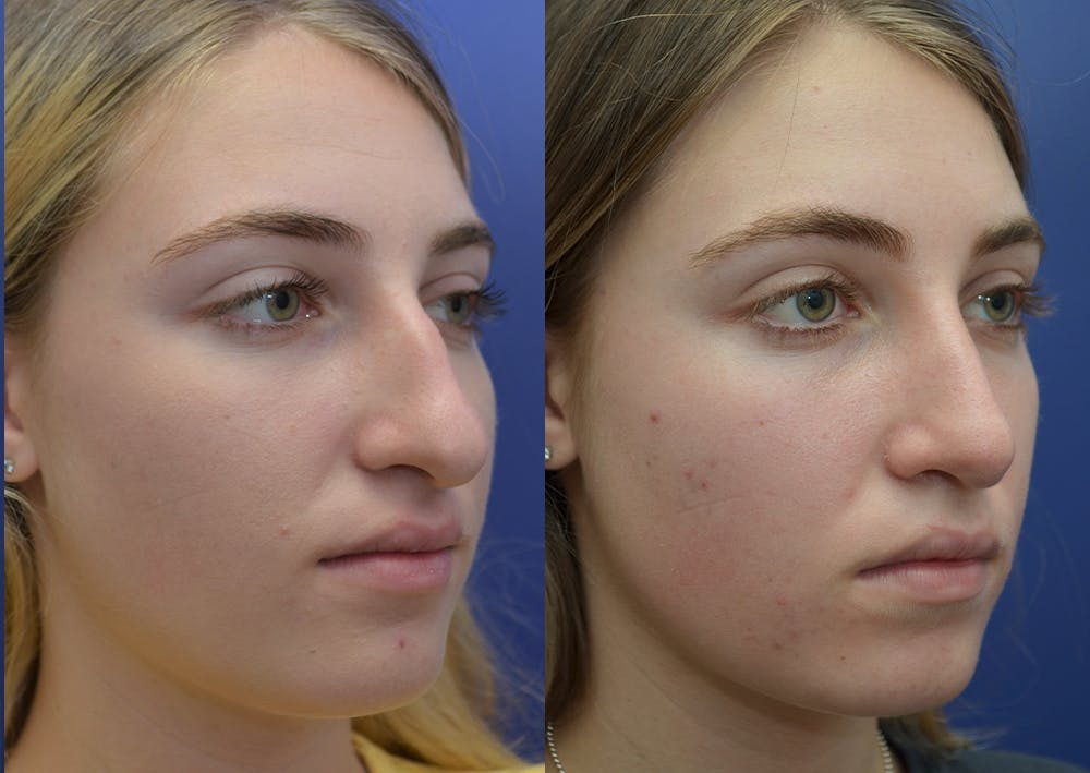 Rhinoplasty (Nose Reshaping) Gallery - Patient 5930630 - Image 4