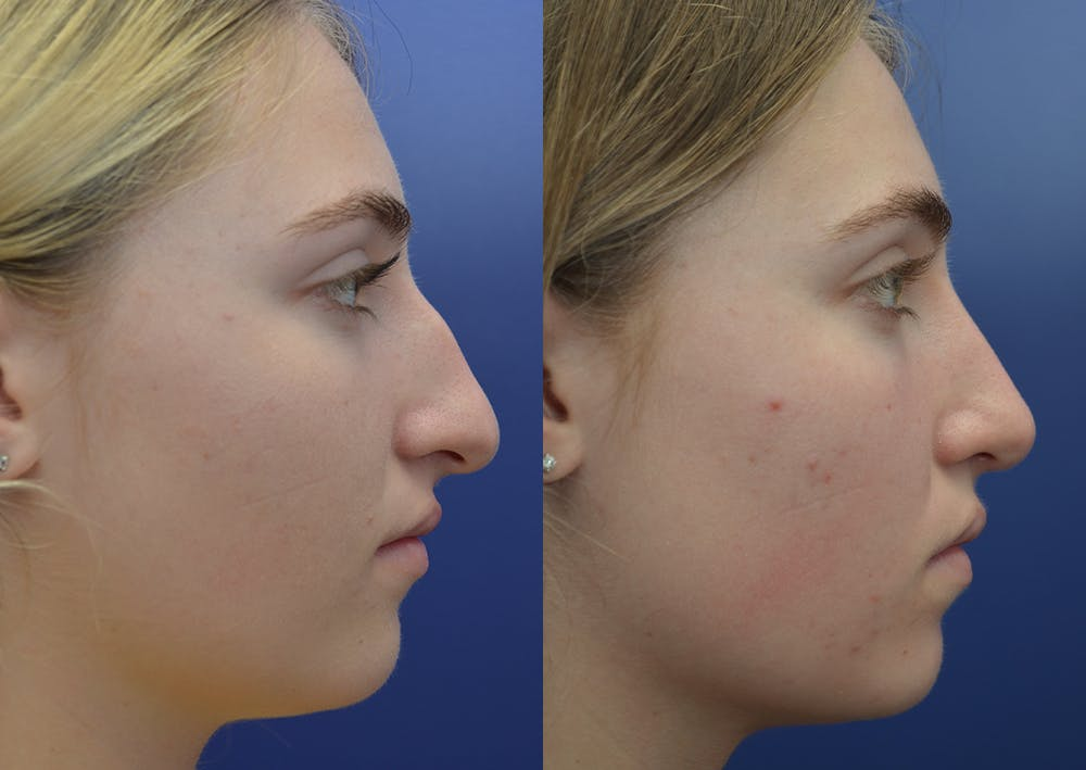 Rhinoplasty (Nose Reshaping) Gallery - Patient 5930630 - Image 5