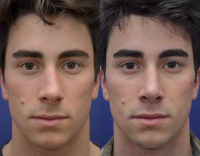 Rhinoplasty (Nose Reshaping) Gallery - Patient 19339316 - Image 1