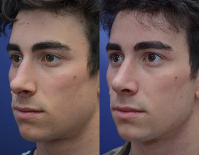 Rhinoplasty (Nose Reshaping) Gallery - Patient 19339316 - Image 2