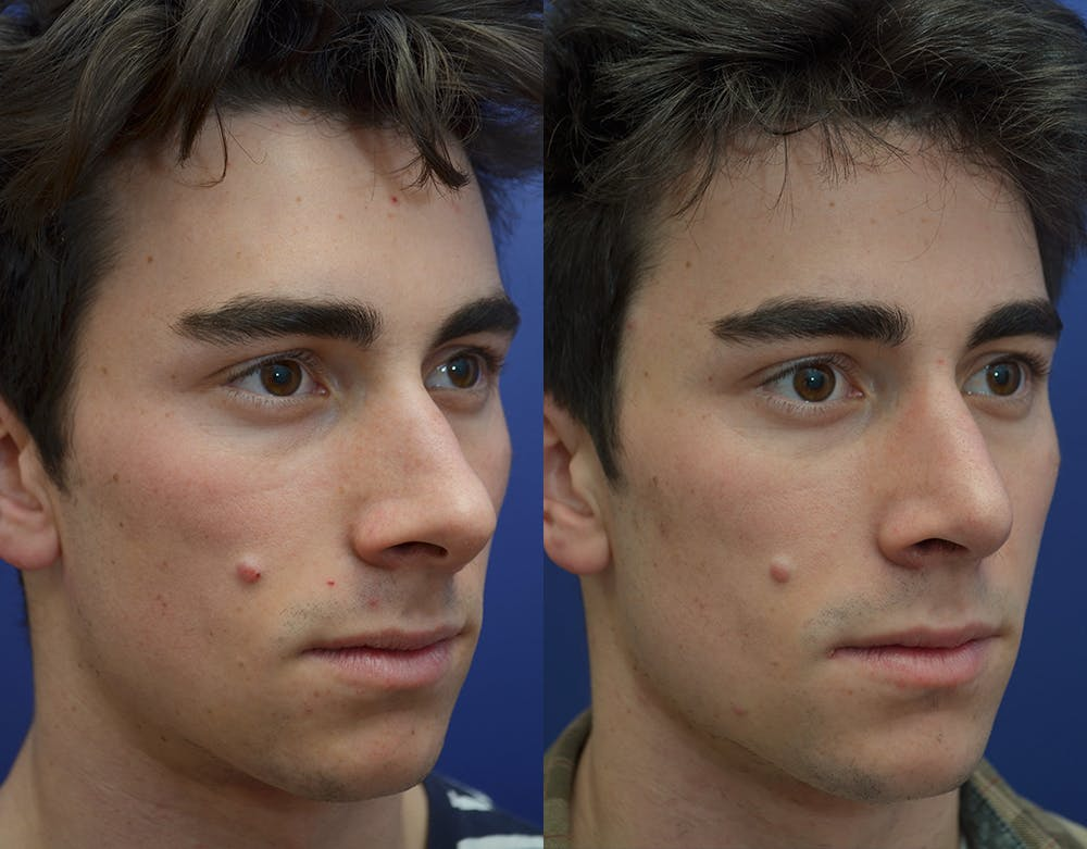 Rhinoplasty (Nose Reshaping) Gallery - Patient 19339316 - Image 4