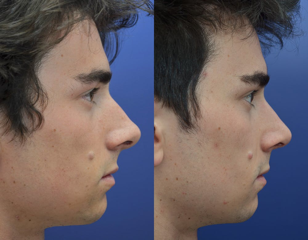 Rhinoplasty (Nose Reshaping) Gallery - Patient 19339316 - Image 5
