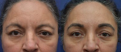 Brow Lift (Forehead Lift) Gallery - Patient 5788717 - Image 1