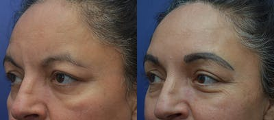 Brow Lift (Forehead Lift) Gallery - Patient 5788717 - Image 2