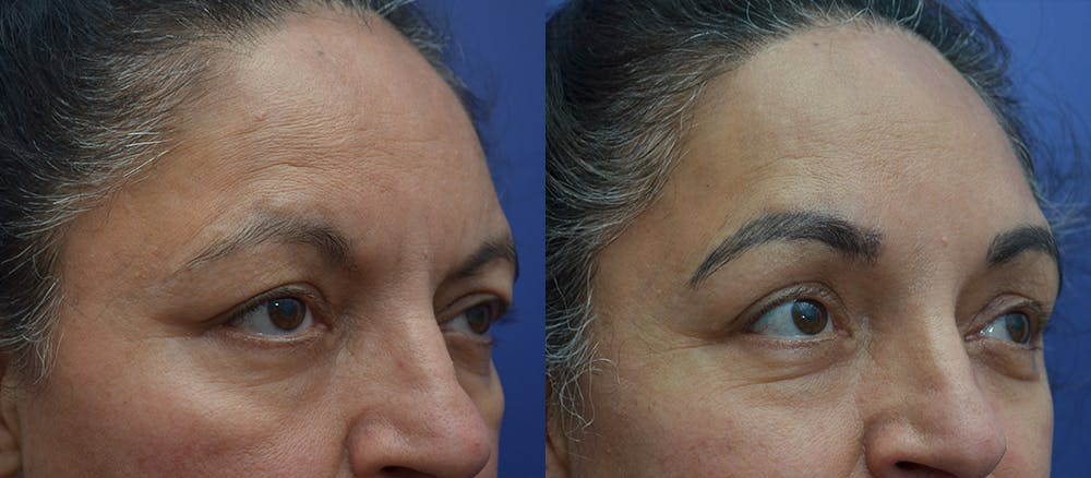 Brow Lift (Forehead Lift) Gallery - Patient 5788717 - Image 3