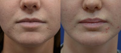 Lip Enhancement Gallery - Patient 19339341 - Image 1