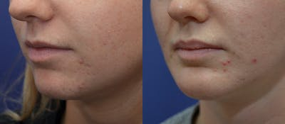 Lip Enhancement Gallery - Patient 19339341 - Image 2