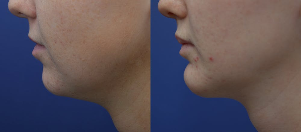Lip Enhancement Gallery - Patient 19339341 - Image 3