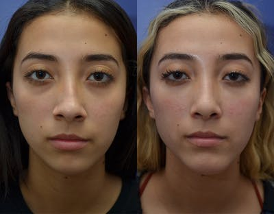 Rhinoplasty (Nose Reshaping) Gallery - Patient 19339358 - Image 1