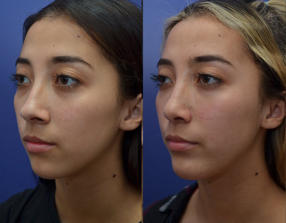 Rhinoplasty (Nose Reshaping) Gallery - Patient 19339358 - Image 2