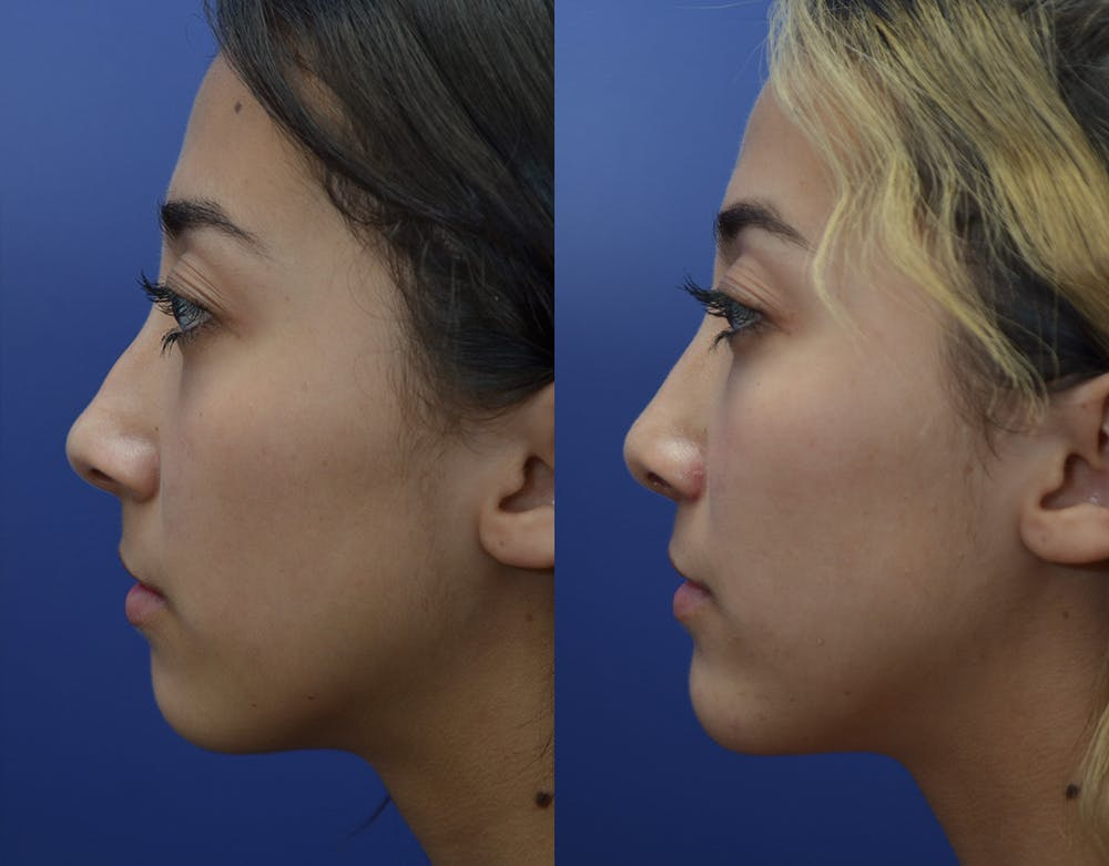 Rhinoplasty (Nose Reshaping) Gallery - Patient 19339358 - Image 3