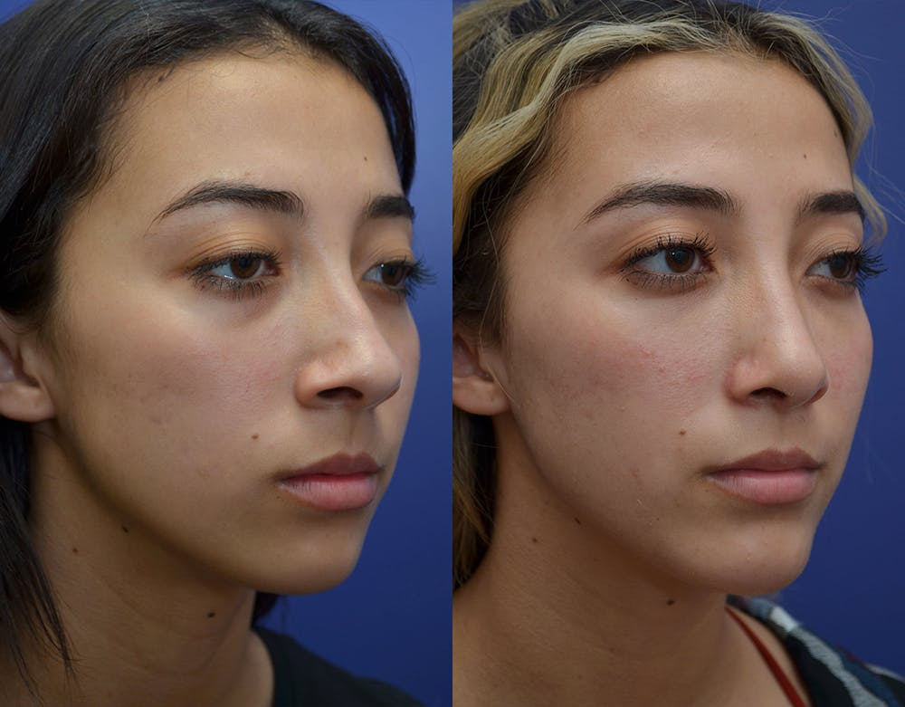 Rhinoplasty (Nose Reshaping) Gallery - Patient 19339358 - Image 4