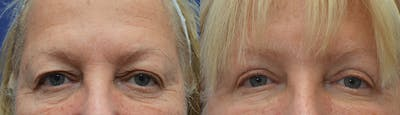 Eyelid Surgery Gallery - Patient 19339373 - Image 1