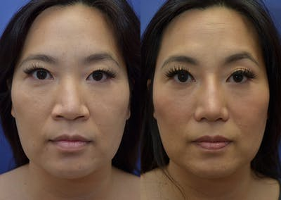 Rhinoplasty (Nose Reshaping) Gallery - Patient 20903687 - Image 1